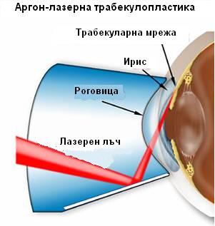 глаукома при диабетици
